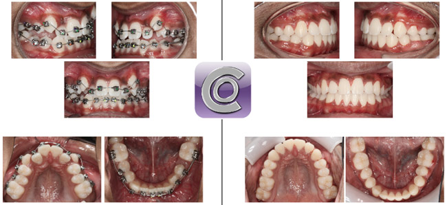 Damon Braces System Orthodontics